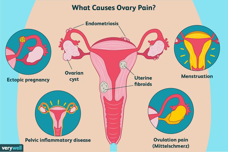 års kr cyster på eggstokkene smerter