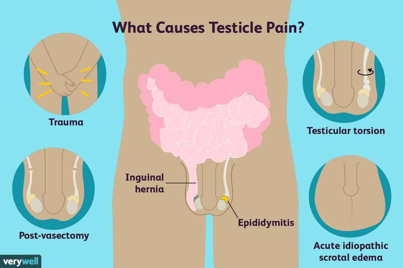 dolore allinguine post vasectomia