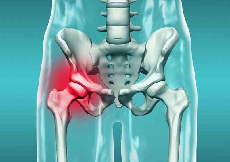 refacerea fracturilor de șold)